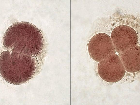 Künftig dürfen Embryos genetisch getestet werden. © Minami Himemiya /GNU/CC wikipedia.com.