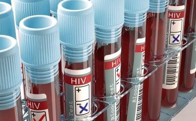 Die HIV-Forschung hat in den letzten Jahren erhebliche Fortschritte gemacht. Foto: ktsdesign / Shutterstock