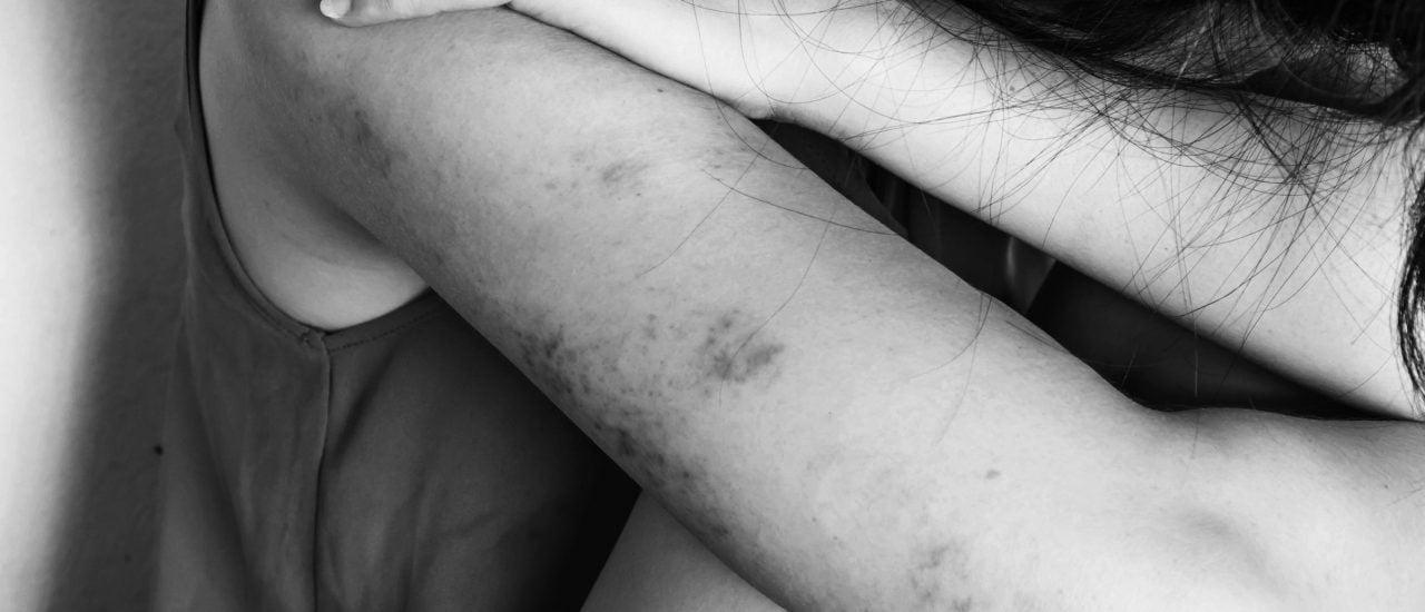 Immer wieder werden Frauen Opfer von häuslicher Gewalt. Foto: Yupa Watchanakit / Shutterstock.com
